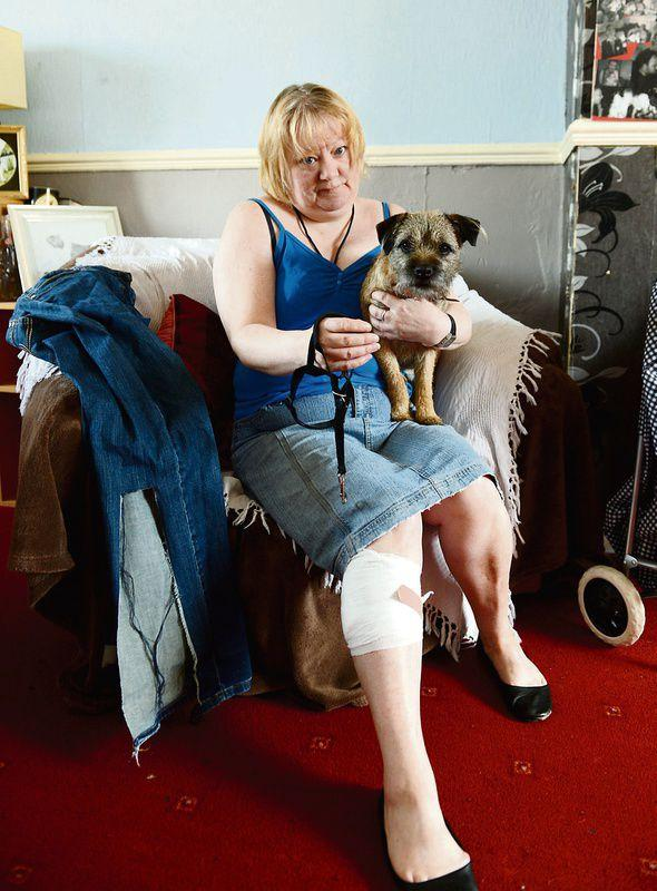 Dog attack woman launches campaign | Times and Star